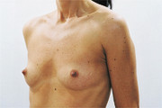 Boob lift before and after photos the money